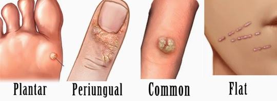 causes of hpv warts