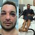 Ativista gay é sequestrado, agredido e estuprado por dois dias
