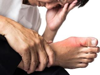 Triệu chứng của bệnh gout