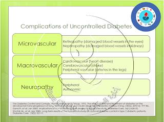 إعتلال الاعصاب Neuropathy