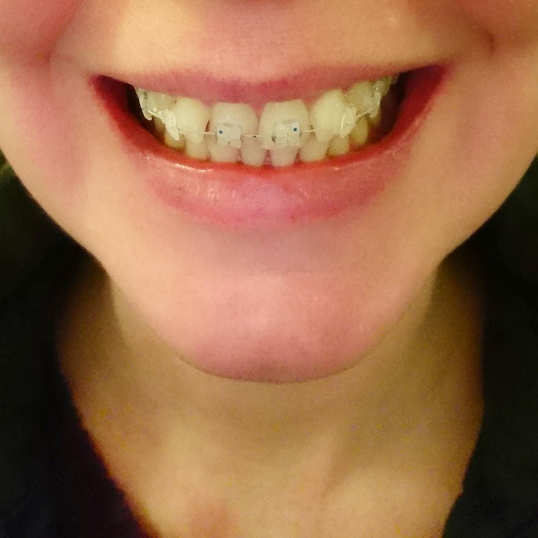 Cara Berkumur Dengan Listerine Untuk Gigi Dan Mulut