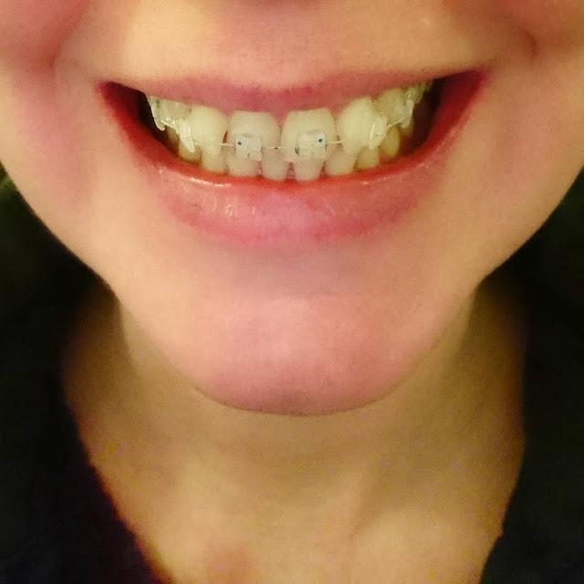 listerine untuk menghilangkan bekas makanan pada gigi