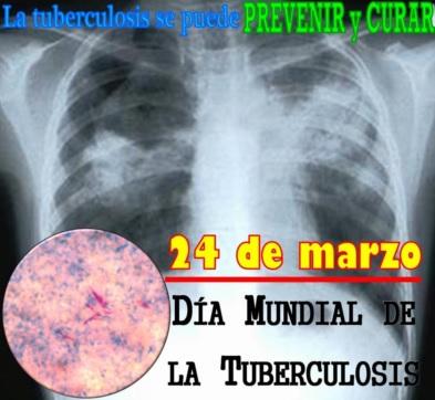 Imagen de una radiografía por el Día Mundial de lucha contra la tuberculosis