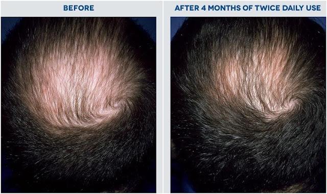 Testimoni Hasil Pemakaian Rogaine Foam Minoxidil 5% Untuk Penumbuh Rambut Botak