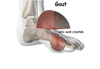 Nguyên nhân gây ra bệnh gout do tích tụ acid uric