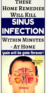 Sinus infection treatment at home secrets –