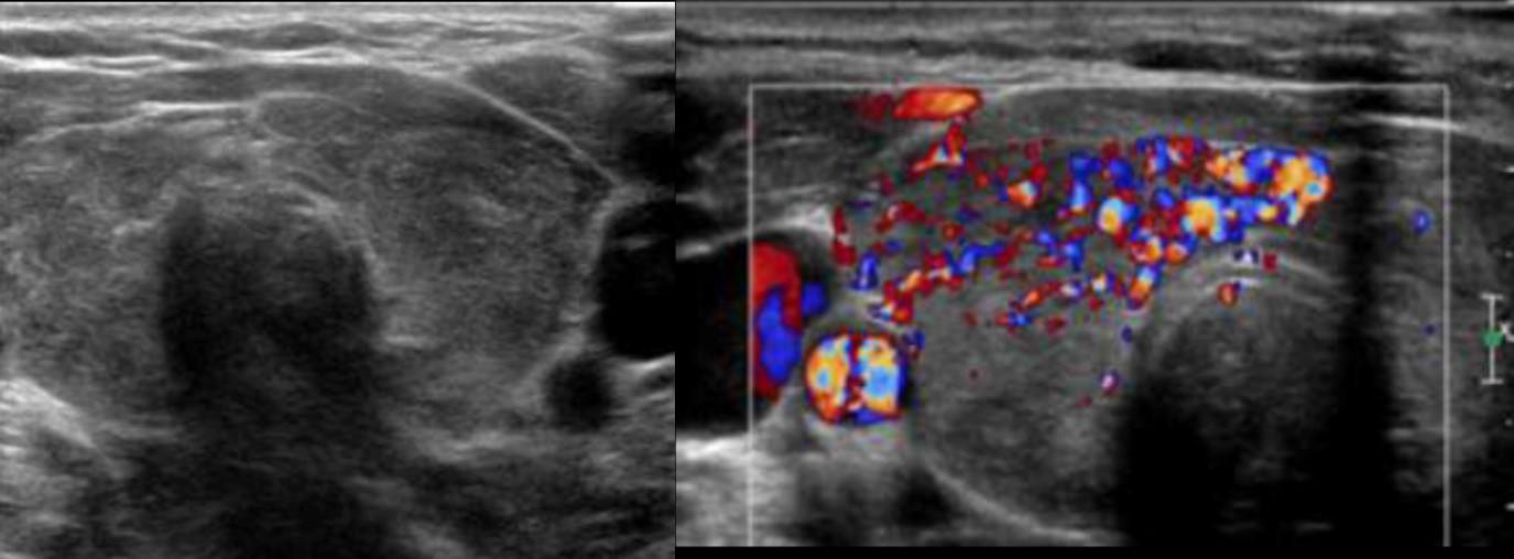Dokter Nuklir: Saya kan sakit tiroid, kenapa disuruh foto???