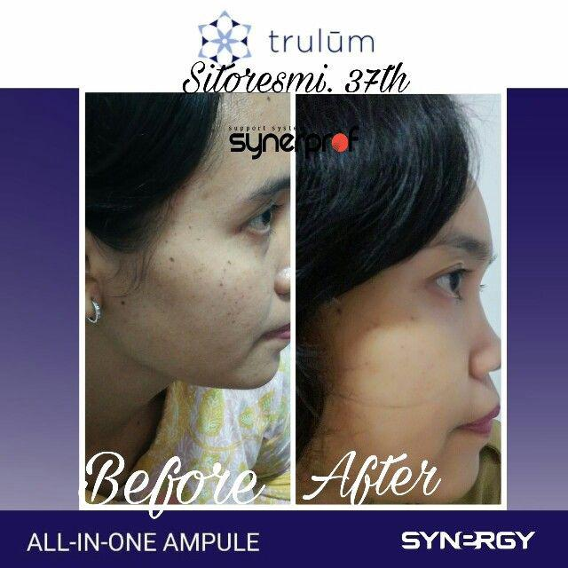 Klinik estetika Trulum All In One Ampoule Di Jempang
