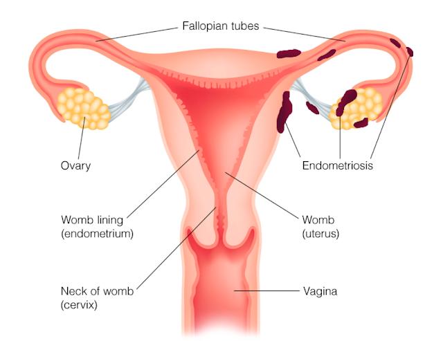 http://www.punyahospitals.com/endometriosis/