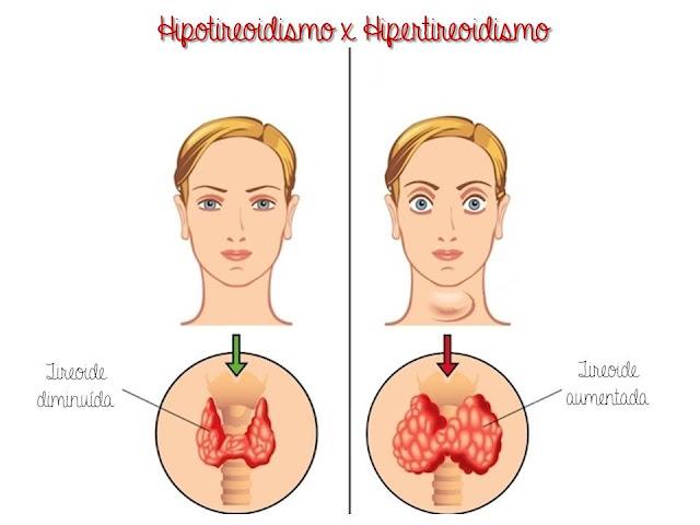 Hipotireoidismo, tireoide, hipotireoidismo na gravidez, Nasceu uma Mãe, hormônios na gravidez, exames na gravidez, gestação, pós gestação, aborto espontâneo,