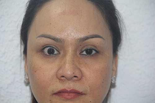 Tác hại khi cắt mí mắt nhầm địa chỉ là mắt quá to