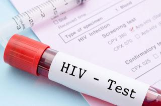 Penyakit HIV - Gejala, Penyebab, dan Cara Mengobati