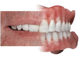 why denture is so important in gujarati language article