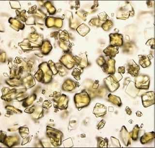 idrar ürik asit kristal