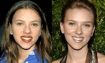El antes y el después de los famosos