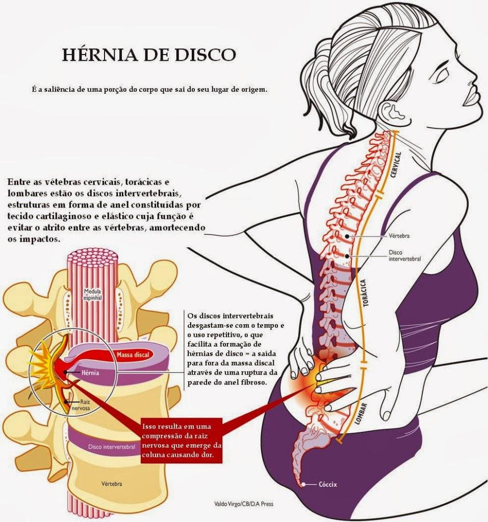 Vivianayoga Yoga Y Hernia De Disco