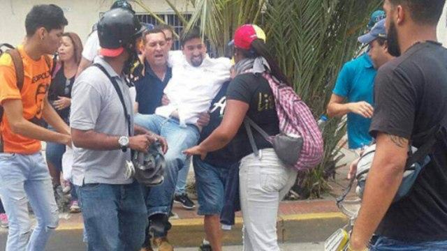 Dip. Freddy Guevara recibió doce puntos en una pierna por represión durante marcha