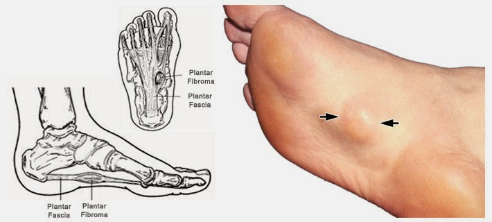 Benign Tumor Foot Bottom