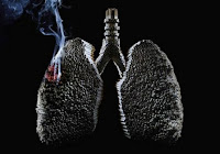 Bahaya merokok bagi wanita