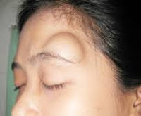 Obat herbal untuk menghilangkan benjolan di kepala