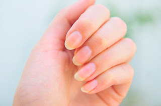 palmistry based prediction on nails