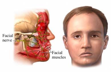 Obat Herbal Stroke Iskemik & Hemoragik Yang Ampuh, Efektif dan Aman