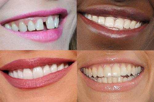 Malformations des dents ..