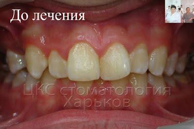 Зубы до лечения брекетами с удалением