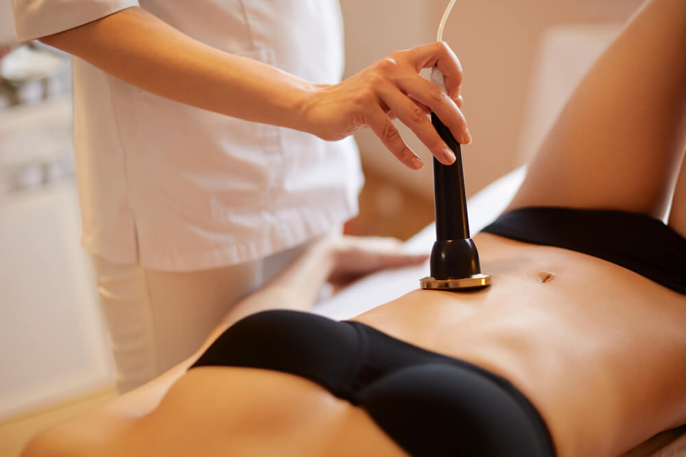 How the Laser Stretch Marks Removal surgery becomes an essential one?