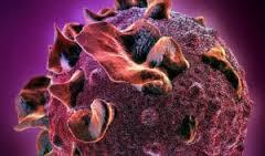 Bakteri Penyebab Penyakit Kencing Nana