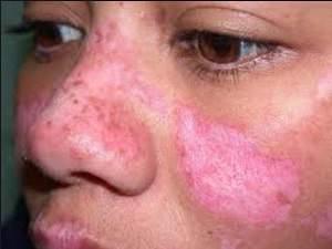 Penyakit Lupus: Penyebab, Gejala dan Cara Mengobatinya