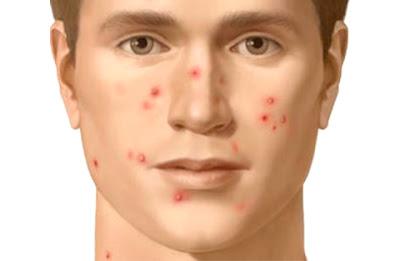 12 tips langkah mengatasi wajah berjerawat