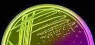 Staphylococcus aureus colonies