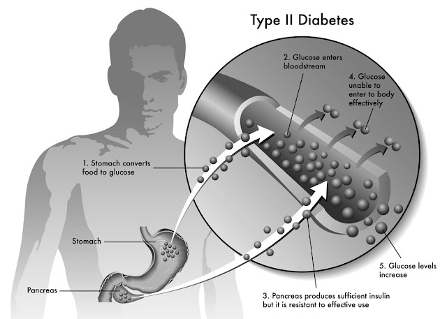 Type 2 Diabetes - Should You Use A Ketogenic Diet Plan