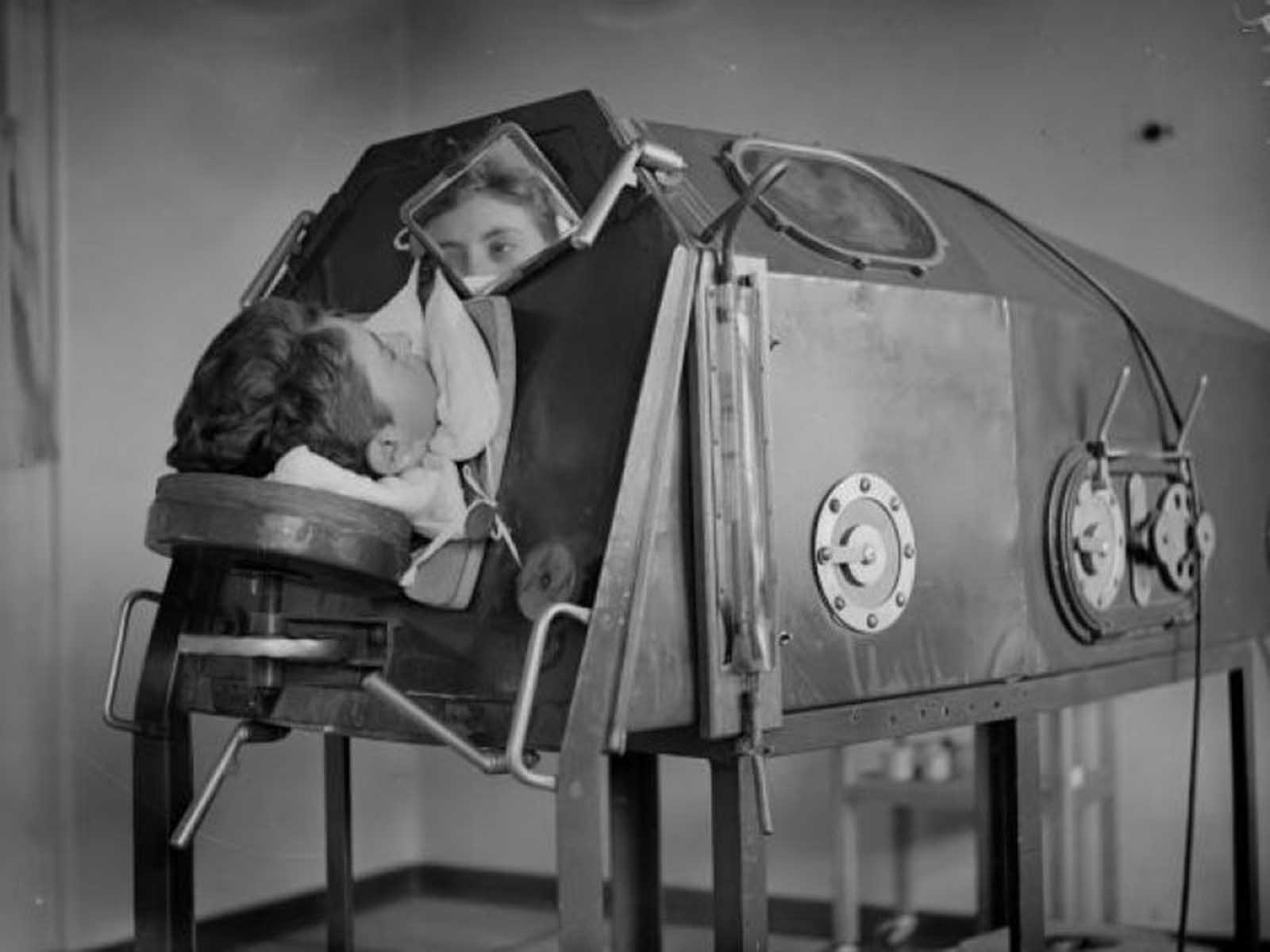 Un paciente acostado en una máquina de respiración artificial llamada pulmón de hierro, alrededor de 1938.