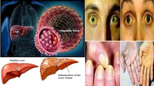 Obat Hepatitis Alami, Cara Menyembuhkan Penyakit Hepatitis Untuk Semua Usia 100% Aman, Efektif Dan Cepat