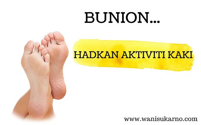 Bunion hadkan aktiviti kaki