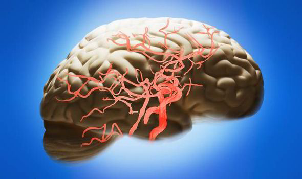 وصفات طبيعية تفيد في حالة الجلطة الدماغية