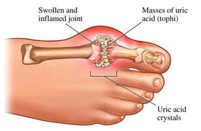gejala asam urat di kaki