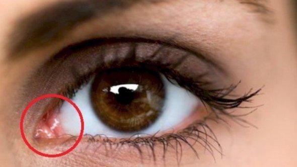 Probabil nu vei ghici care este rolul punctului roz din coltul ochiului! Raspunsul te va surprinde!