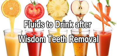 What to drink after wisdom teeth removal?