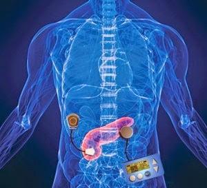 páncreas biónico para la diabetes tipo 1