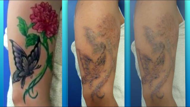 como-remover-tatuagem-naturalmente