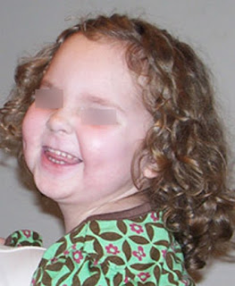 A child who was diagnosed with Potter's syndrome at birth Potter's syndrome disease pictures