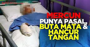 Thumbnail image for Mercun Punya Pasal, Buta Mata Kanan & 6 Jari Hancur