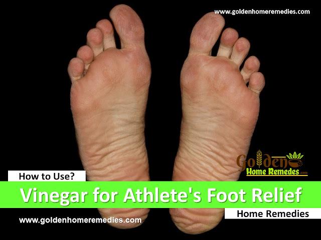 vinegar for athlete's foot, how to use vinegar for athlete's foot, how to make a vinegar foot soak, how to get rid of athlete's foot, home remedies for athlete's foot, athlete's foot treatment overnight fast, athlete's foot fungus treatment, athlete's foot relief, athlete's foot home remedies, how to treat athlete's foot, how to cure athlete's foot, athlete's foot remedies, remedies for athlete's foot, cure athlete's foot, treatment for athlete's foot, best athlete's foot treatment, how to get relief from athlete's foot, relief from athlete's foot, how to get rid of athlete's foot fast,