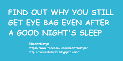 Find out why you still get eye bag even after a good night's sleep