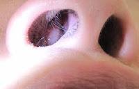 Pengobatan Polip Hidung Tanpa Operasi