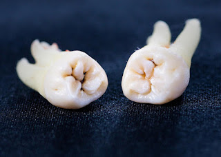 Rétablissement des dents de sagesse