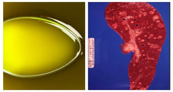 New Study Revealed That This OIL Kills Cancer Cells Within MINUTES!